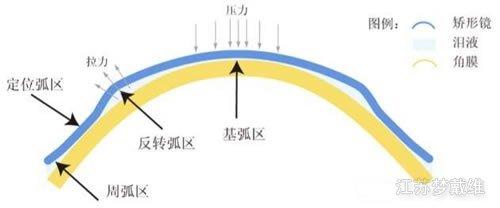 角膜塑形镜定位弧的作用