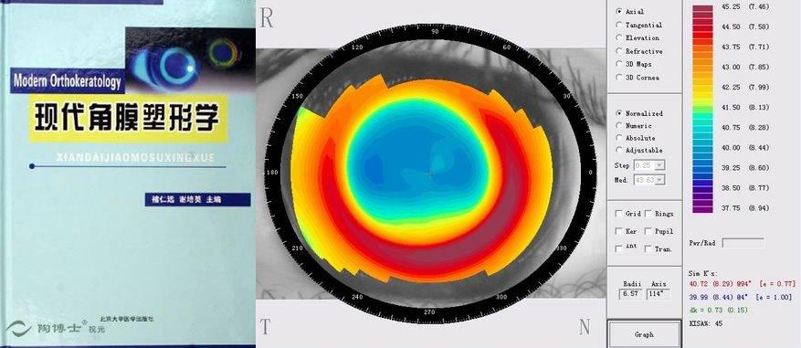 通过角膜塑形机制的研究,为出现更好的镜片提供思路.
