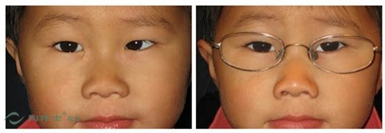 儿童斜视的发病原因不同,类型不同,治疗方法也不一样.